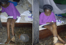 Leg Ulcer: 21-Year-Old  Blessing Igba Needs Your Support