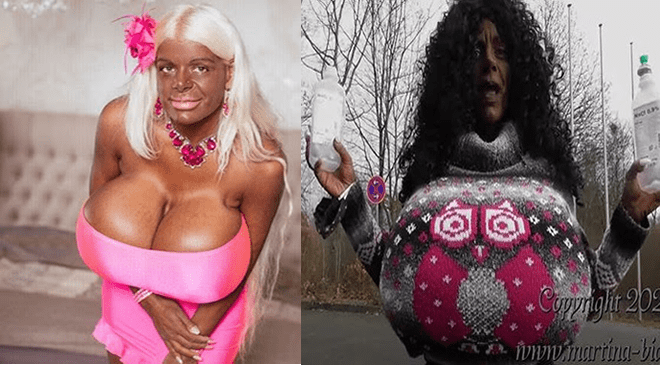 Breasts big men with Enlarged breasts