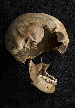 C0046299 Skeletons