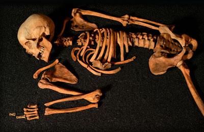 gaelic skeleton hunterian