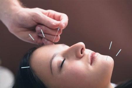facial acupuncture