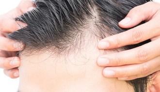 Hair transplantation cost in Jaipur