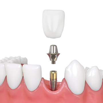 why dental implants are expensive
