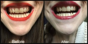 smilelab advanced teeth whitening pen before and after