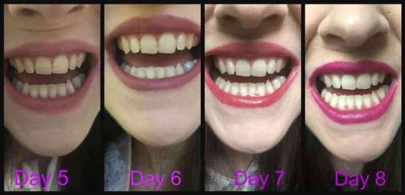 Make a great first impression with Snow teeth whitening kit before and after 1
