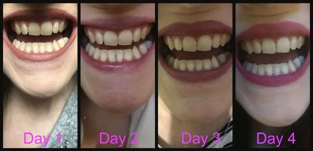 Fake Vs Real Box  Snow Teeth Whitening Kit