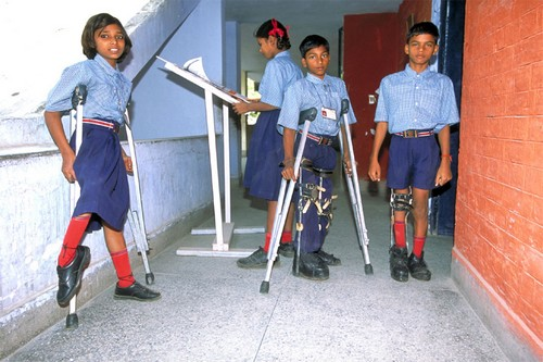 Incurable Diseases Polio