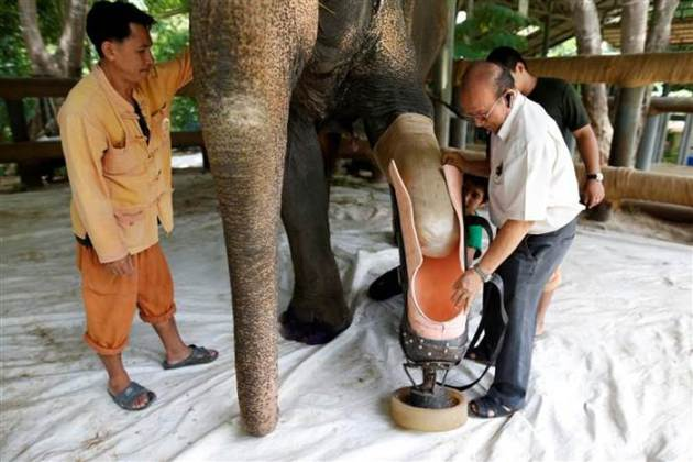 Mosha gets fitted for her prosthetic leg by Thai doctors. Photo Credit: Reuters