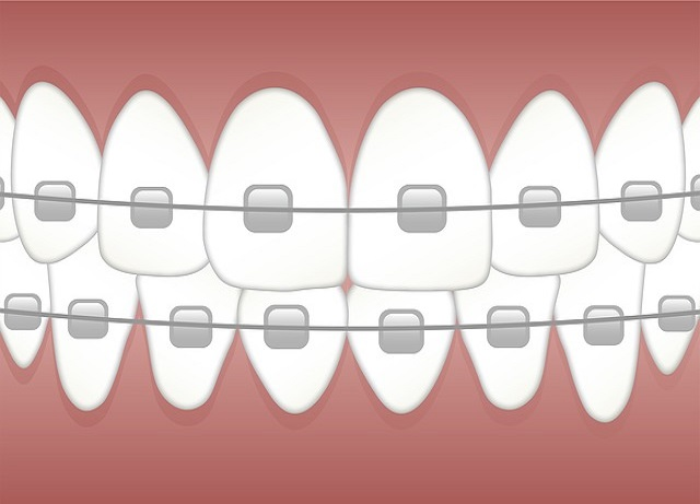 Significant Analyzes of Strong Smile Workings
