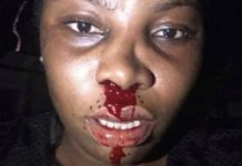 A Nigerian Lady Bleeds From Nose After Being Hit By A Police Officer With The Butt Of A Gun In Warri