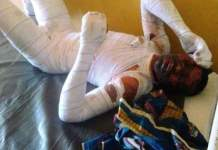 Disturbing Photos Of Man Elvis Chidinma Omah Set Ablaze By 18 year old Lover Esther In Makurdi