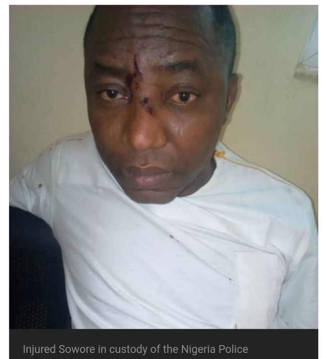 Injured Sowore And Colleagues Refuses To Eat In Police Detention