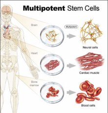 Multipotent stem cell