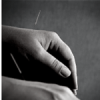 Dry Needling Acupuncture Glossop