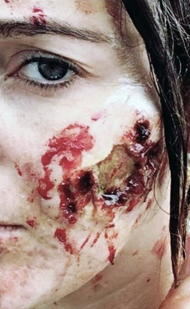 Rotting Wounds Halloween SFX Face Prosthetic
