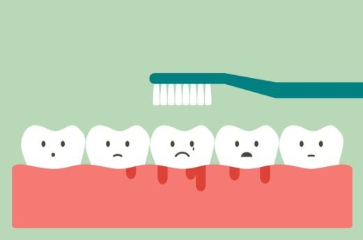 What are the Home Remedies for Bleeding Gums ?