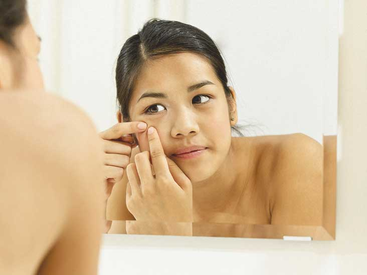 6 Best Adult Cystic Acne Treatments for Natural Relief