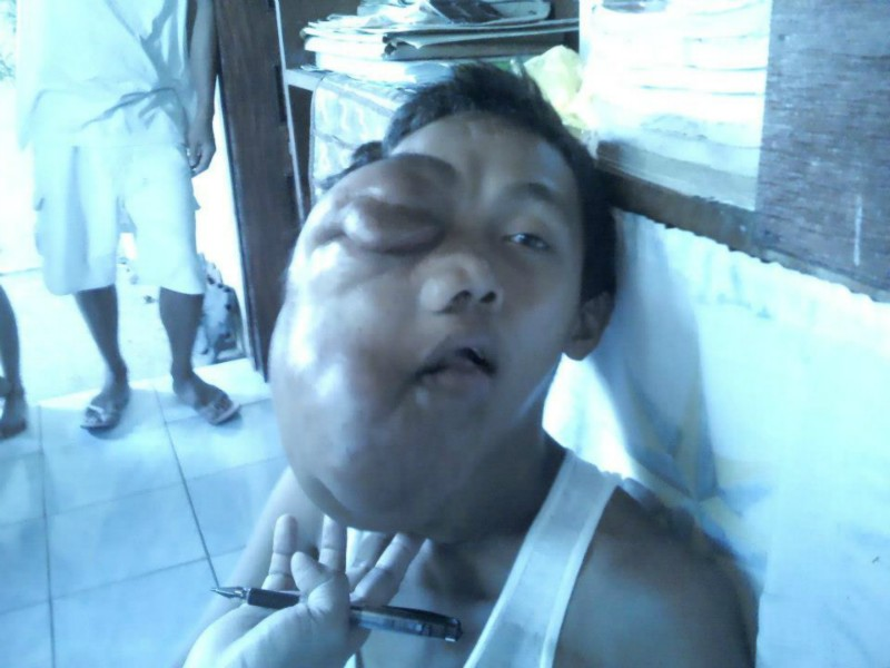 boy with facial tumor in the Philippines