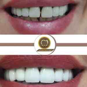Ayrık Diş