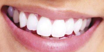 Tek Diş İmplant