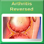 Ten Early Warning Signs of Arthritis