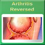Ten Early Warning Signs of Arthritis