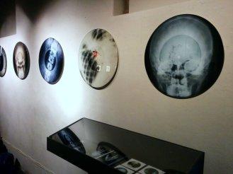 X-ray Audio - Paul's photographs