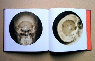 X-ray discs