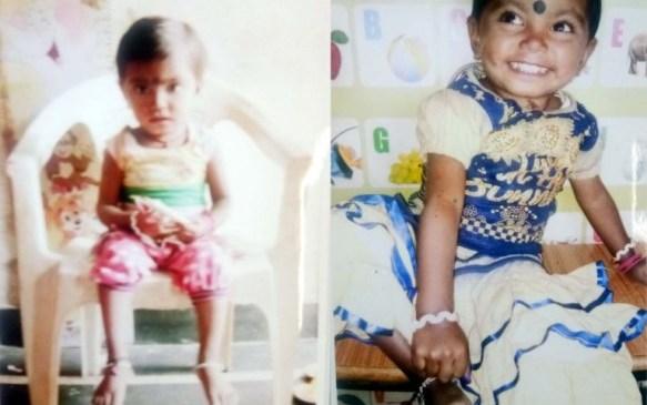 रायपुर : कुपोषण के जाल से बाहर आई बिंदिया, मुख्यमंत्री सुपोषण अभियान से आया परिर्वतन