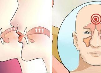 Kill Sinus Infection