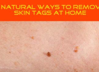 6 Natural Ways to Remove Skin Tags At Home