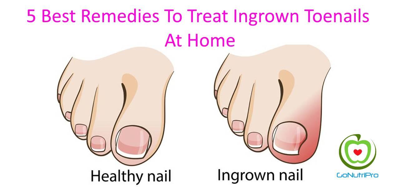 5 Best Remedies To Treat Ingrown Toenails At Home