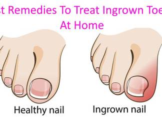 5 Best Remedies To Treat Ingrown Toenails At Home