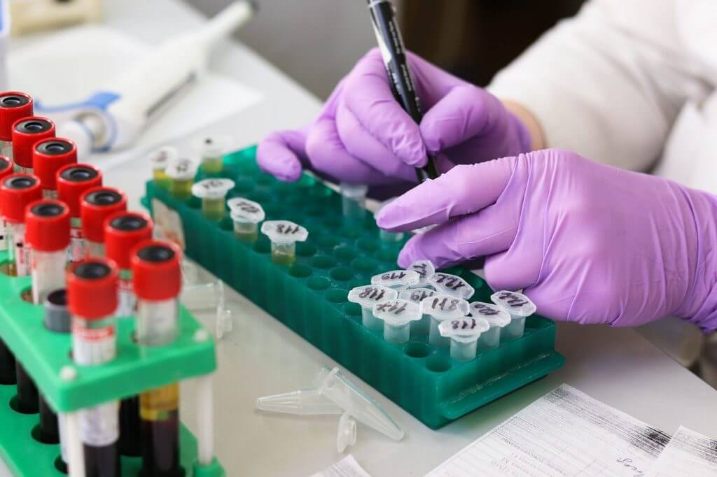 blood type is most prone to coronavirus