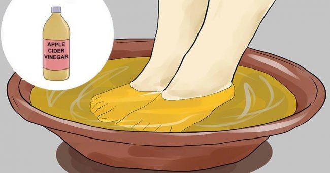 soak the feet in vinegar