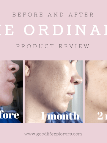 The Ordinary Skincare Products Review, Skincare, beauty, products, review, acne, wrinkles, fine lines, hyper pigmentation, mature skin, affordable products, before and after, micro needling