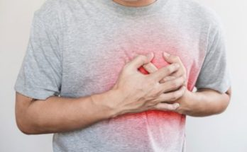 Coronary Heart Disease, Trend Health