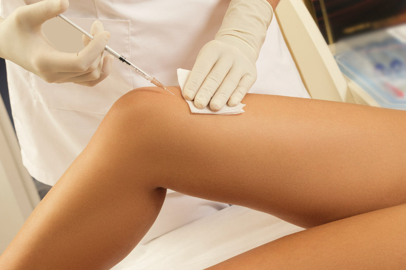 Prolozone Injection in knee