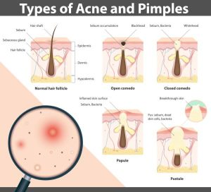 What Is a Papule? Know The Symptoms And Treatment To