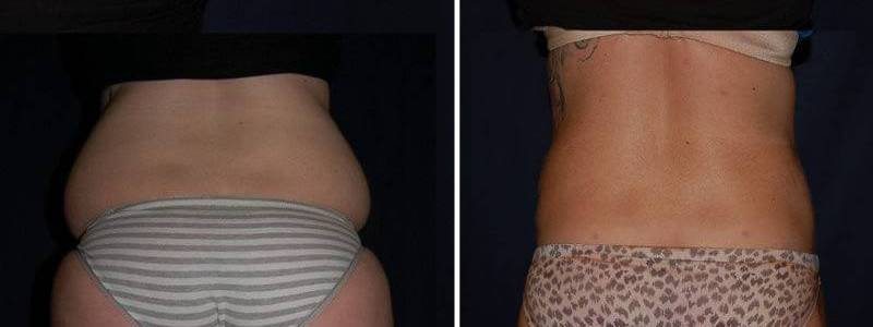 90 Liposuction Before and After Photo