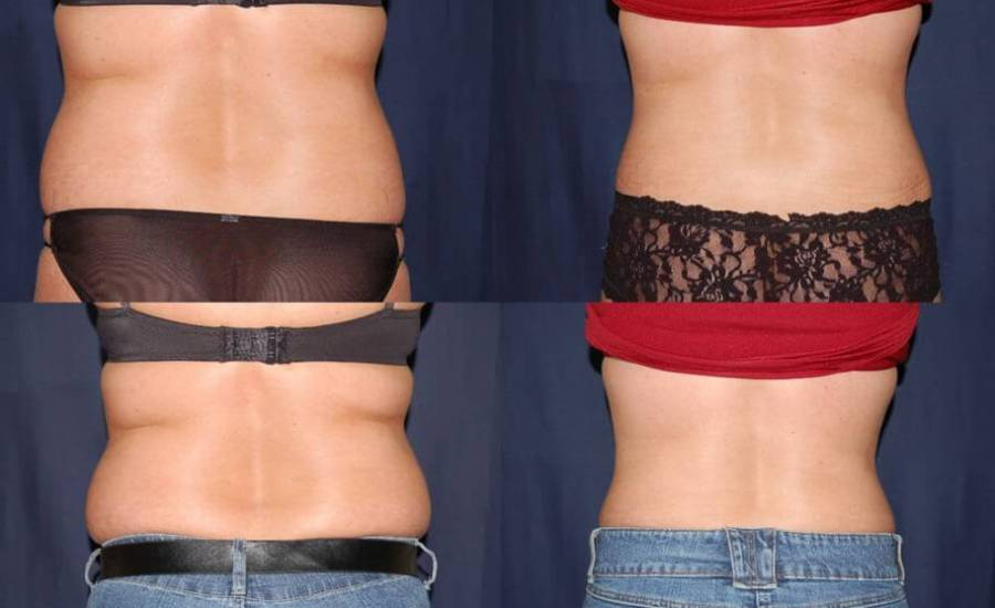 320 Abdominoplasty Before and After Photo