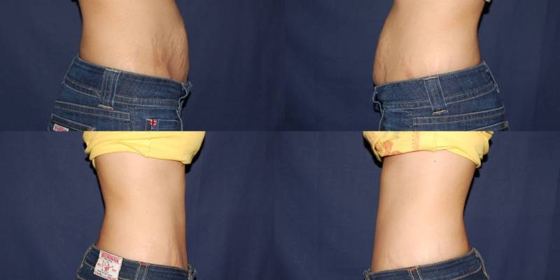 257 Tummy Tuck Before and After Photo