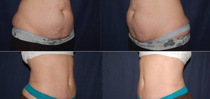 213 Tummy Tuck Results