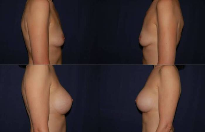 127 Breast Enlargement Before & After Photo
