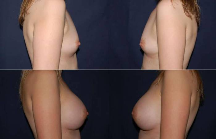 185 Breast Augmentation Before and After Photo