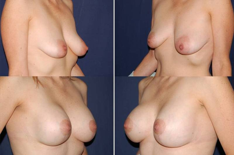 31 Breast augmentation and Mastopexy