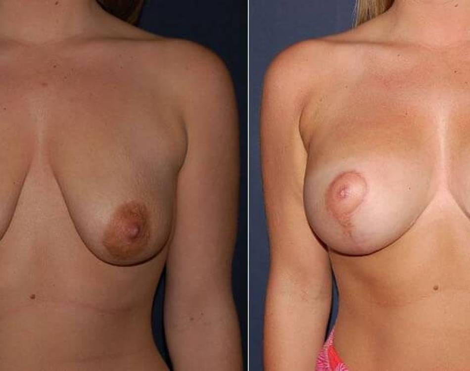 59 Before and After Breast Implants