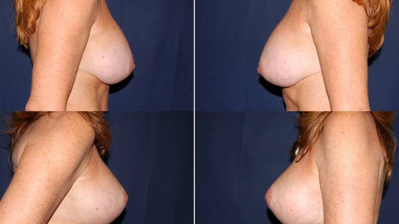 50 Breast Lift with Implants