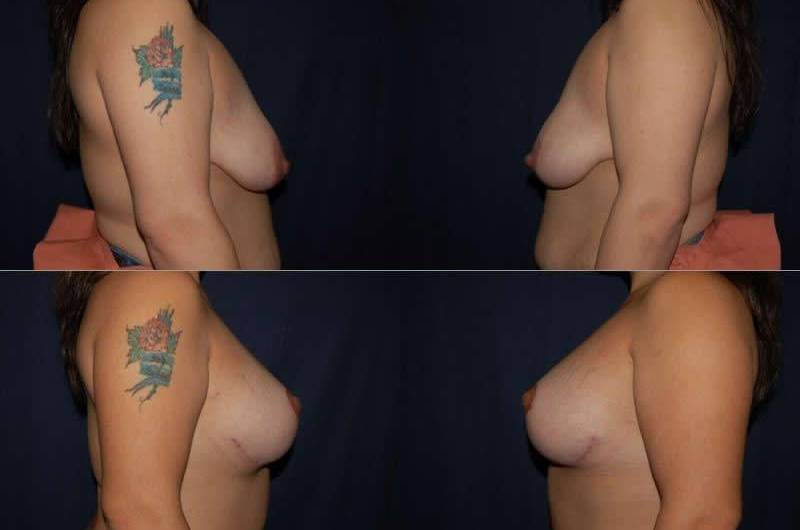 43 Breast Lift with Implants