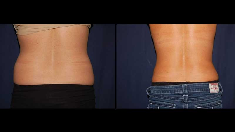 271 Tummy Tuck Before and After